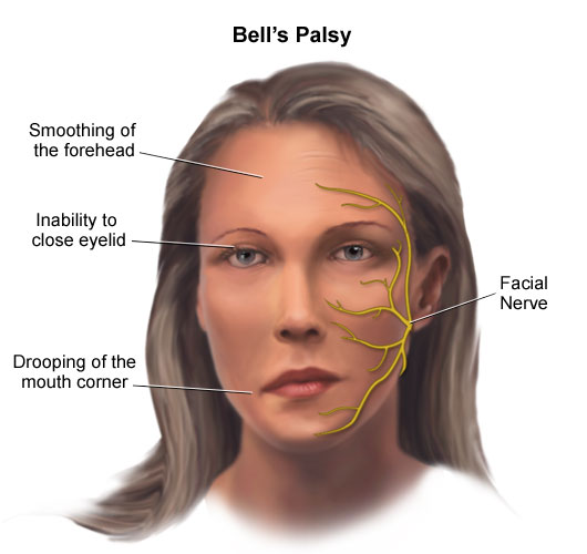 Bell´s Palsy