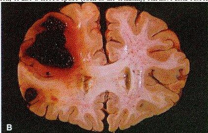 Thrombocytopenia2