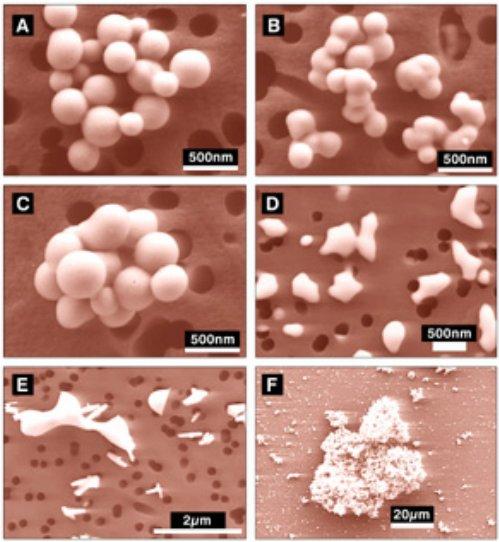 nanoesferas.jpg?w=499&h=542