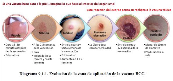efectos de inyectarse anabolicos
